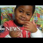 8-Year-Old Boy Receives Dual Hand Transplants.