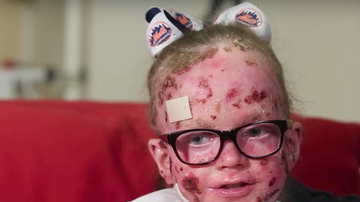 Going Viral - The Rare Skin Disease Parents Need to Know About