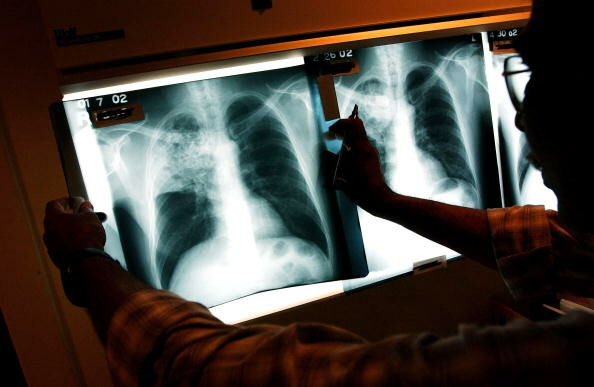 Healthcare Workers Fight TB In The Inner City