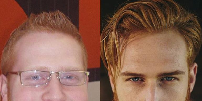 Beard Turns Nerdy Guy Into Hunky GQ Model