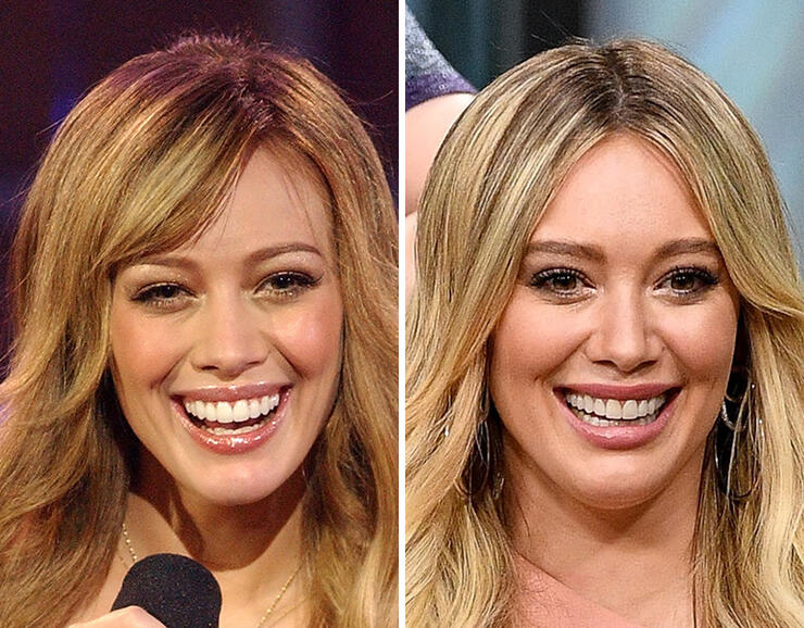 Celebrity Teeth Before After Iheartradio