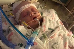 Iowa baby hit in head by softball makes small progress UPDATE