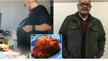 Conrad - Non-drinker discovers his 'beer belly' is actually a 70-pound TUMOR!