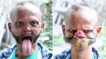 Klinger - Man Claims To Have Longest Tongue Can Lick His Own Forehead