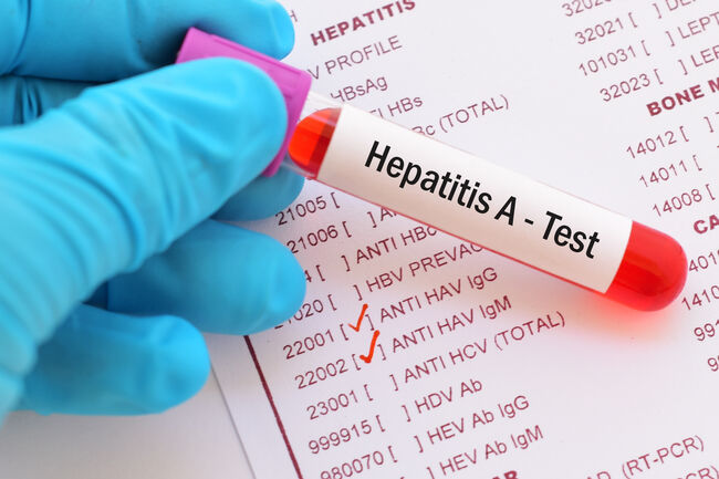 Hepatitis A Getty RF