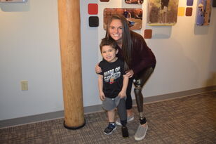 Child Walks Again Thanks Prosthetic Donation From Non-Profit