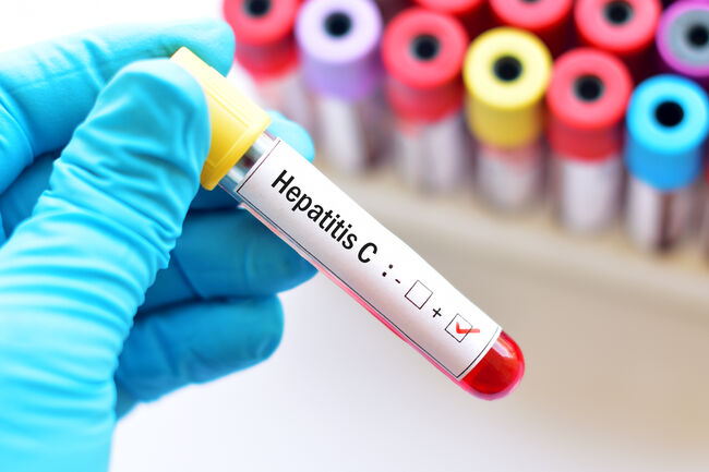 Hepatitis C Getty RF