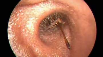 Rockin' Rick (Rick Rider) - Earwax Removal With A Surprise Ending!  (VIDEO) OMG!!!