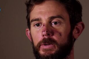 Man Who Was Attacked by Mountain Lion Describes How He Suffocated It