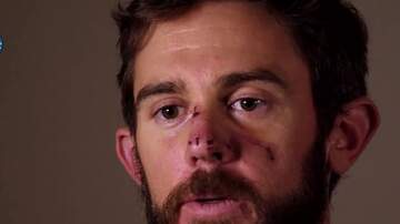 Jake Dill - Man Who Was Attacked by Mountain Lion Describes How He Suffocated It