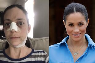 Mom Of Three Spends $25K On Surgery To Look Like Meghan Markle