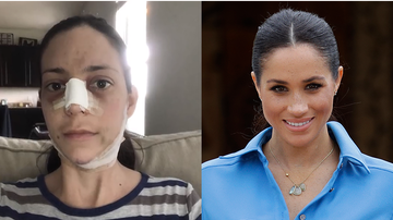 Trending - Mom Of Three Spends $25K On Surgery To Look Like Meghan Markle