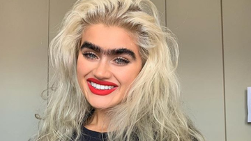 Klinger - Model w/Monobrow Gets Death Threats For Her Look