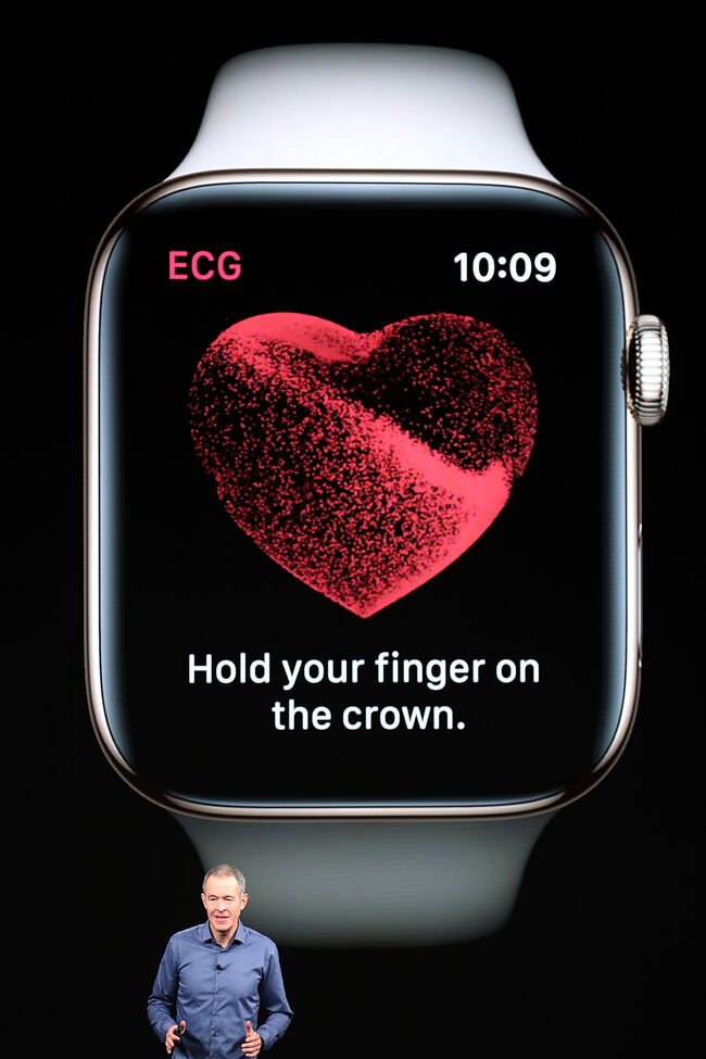 Apple Watch study finds irregular heartbeats