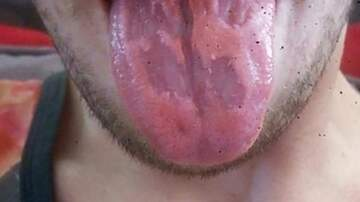 Reid - Here's What Happens To Your Tongue When You Drink Too Many Energy Drinks