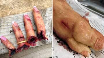 Klinger - Master Baker Creates Gory Cakes Resembling Severed Fingers And Feet!