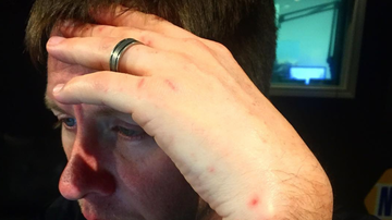 Bobby Bones - Lunchbox's Hands No Longer Have Spots On Them