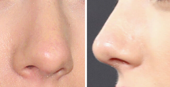 Can You Guess The Celeb By Their Nose?