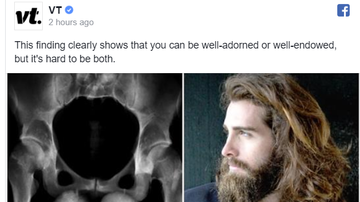 Steve - Men with long hair and beards have the smallest bits, study claims