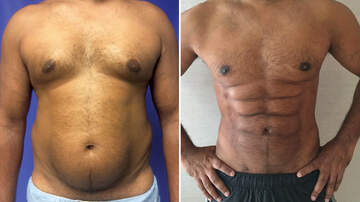 Scott and Sadie - A New Plastic Surgery Procedure Can Sculpt Your Belly Fat into a Six Pack