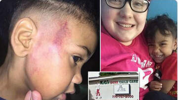 Conrad - Mom claims teacher struck her 3-year-old leaving a red 'handprint'.