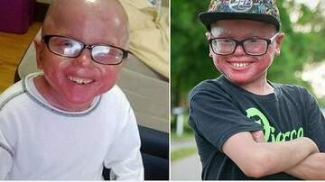 Conrad - Boy w/rare disorder that causes him to constantly shed skin like a snake!
