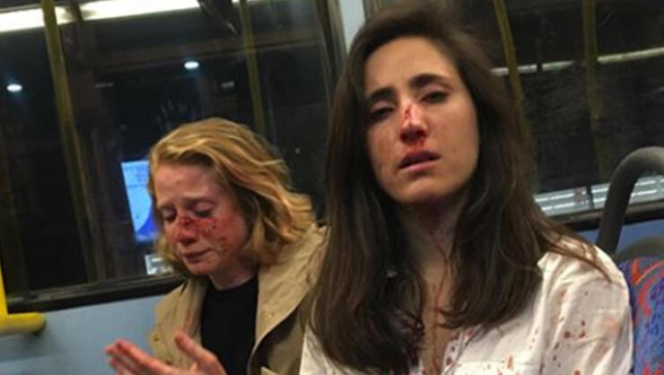 Melania Geymonat and her girlfriend Chris after being assaulted on a bus in London