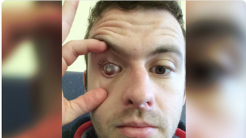 BC - Man Goes Partially Blind After Showering In Contact Lenses