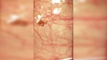 National News - Kentucky Man Finds Deer Tick Attached To His Eyeball