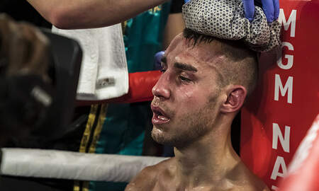 Sports Top Stories - Boxer Maxim Dadashev Dies After Suffering Severe Brain Injury During Fight