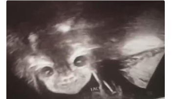 Qui West - Teen's Pregnancy Scan Shows Devilish Baby Starring Right Into Her Soul!