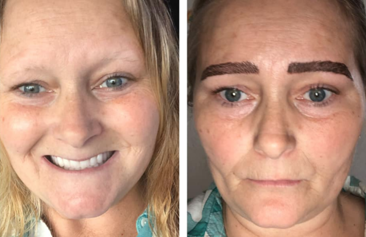 Woman's Microblading Nightmare Goes Viral | iHeartRadio