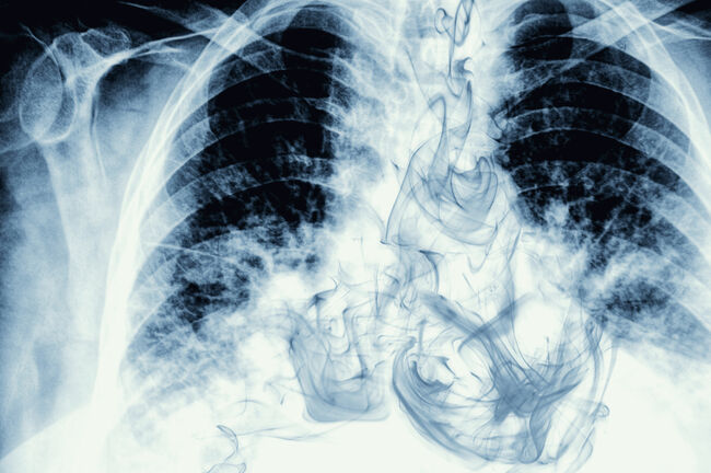 Smoke visible on chest X-ray image