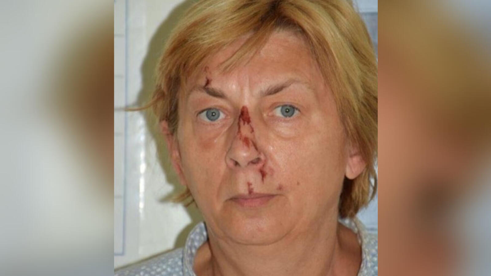 Woman Rescued On Croatian Island Doesn't Know Her Name Or How She Got There