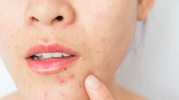 Acne after Age 30? Learn why Outbreaks Occur and What to do about Them