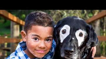 Ricky - 8-Year-Old Boy Embarrassed Of His Skin Meets Dog With The Same Condition